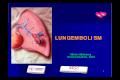 Allt vi vill veta om lungembolism